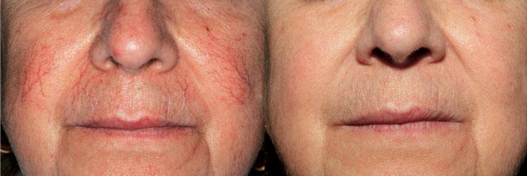 ناپدید کردن رگ های پوستی حاصل از واریس توسط دستگاه پلاسما جت (دستگاه پلکسر)