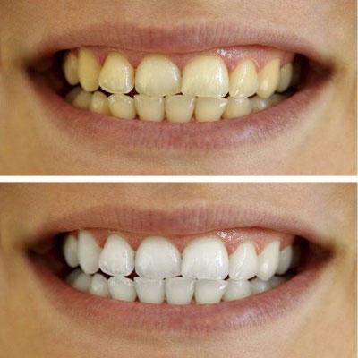 سفید کردن دندان توسط دستگاه پلاسما جت (دستگاه پلکسر)