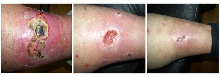 ترمیم زخم توسط دستگاه پلاسما جت (دستگاه پلکسر)