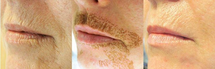 از بین بردن چین و چروک و جوان سازی پوست توسط دستگاه پلاسما جت (دستگاه پلکسر)