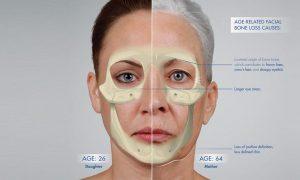تحلیل رفتن استخوان ها و ایجاد افتادگی در پوست صورت
