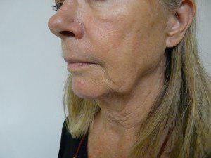 تحلیل رفتن بافت های زیر پوستی و افتادگی پوست صورت در اثر نیروی جاذبه