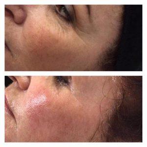 نتایج لحظه ای استفاده از روش لیفتینگ سرد پوست