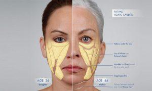 تحلیل رفتن چربی زیر پوستی و ایجاد افتادگی در پوست صورت