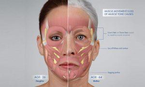 تحلیل رفتن عضلات و ایجاد افتادگی در پوست صورت