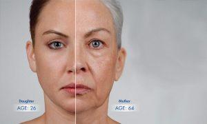 روند پیری پوست در صورت