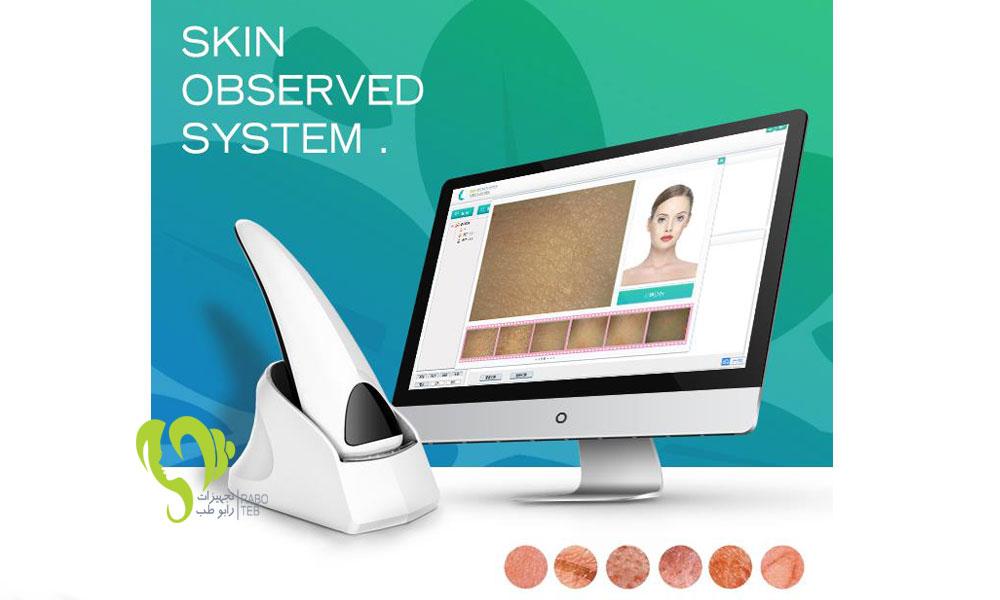 دستگاه اسکن پوست