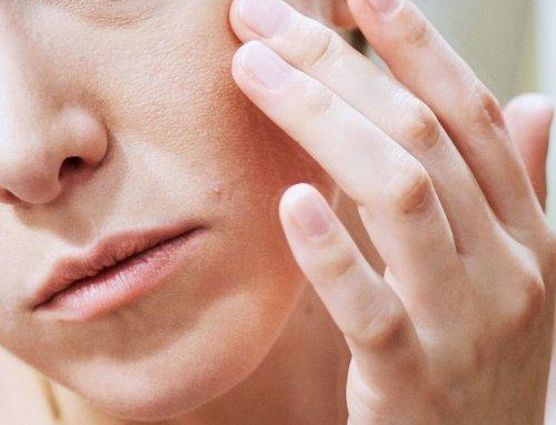 بهترین ماسک های خانگی برای درمان جوش صورت