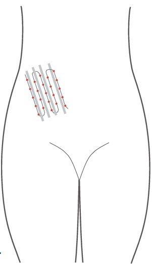کوکتل درمان جای جوش MESOMATRIX برای علائم کشیدگی و اسکارها