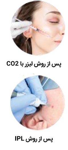 پس از روش لیزر با CO2