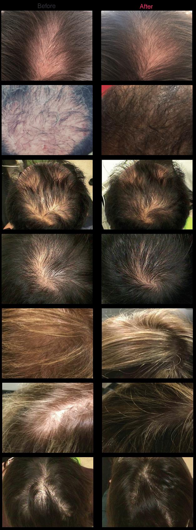 نتایج قبل و بعد استفاده از فیلر مو