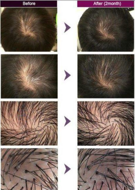 اثرات فیلر مو